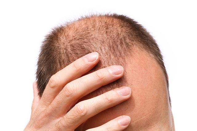 A hajhullás elleni vitaminok nap, mint nap szedhetők