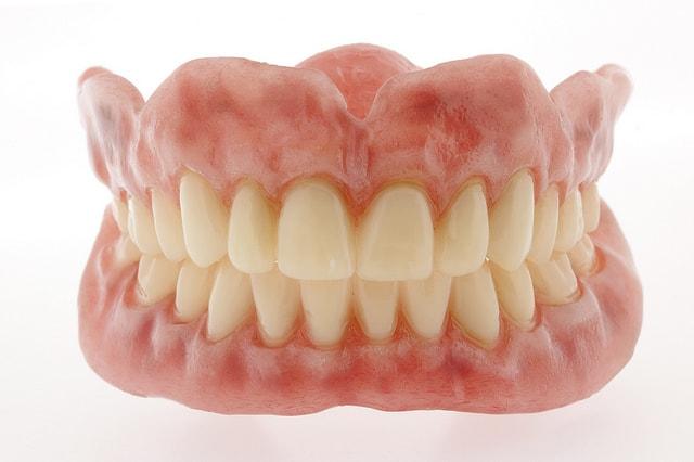 Mindenkit érdekelnek a fogsor árak