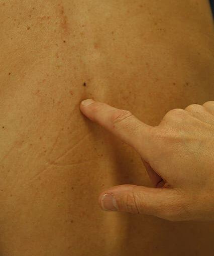Mik a bőrrák jelei?