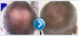 A Greffe de cheveux tökéletes megjelenést biztosít