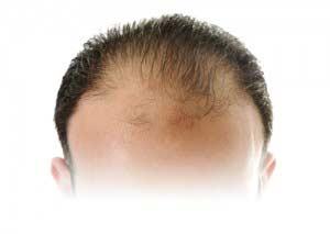 Hair transplant pozitív visszajelzésekkel